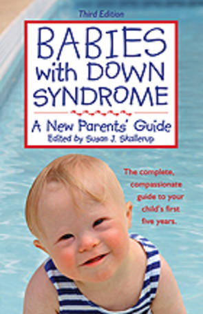 Babies with Down Syndrome A New Parents' Guide, Third Edition
